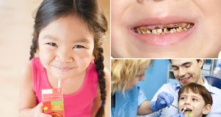 Why do our kids have tooth decay