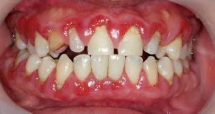 Psoriasis linked to periodontal disease in new study