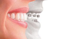 Clear aligners vs braces