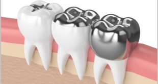 NGO releases briefing about phasing down dental amalgam