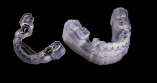 Digitalisation of the gold standard of implantology