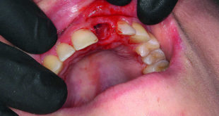 Fast functional aesthetic solution for anterior tooth trauma