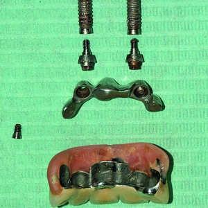 Implant retreatment4