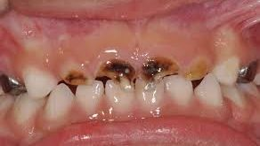 Negative stimuli may help prevent early childhood caries