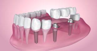 dental-implants-biofilm-web-480x320