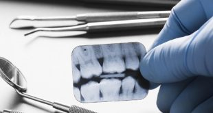Dentists underdiagnose when faced with time pressure