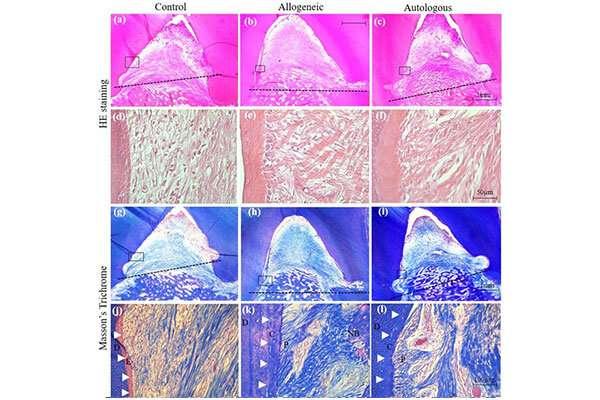 Promising treatment for periodontitis gum regeneration2