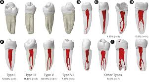 Study tests imaging modalities accuracy on root canal anatomy