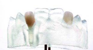 The complete digital implant workflow
