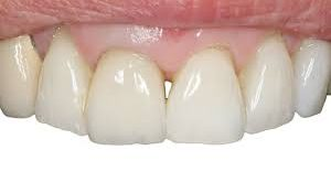 What influences cement choice for single-unit crowns