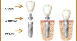 Which type of implant-supported crown abutment is best