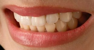 Orthodontics not correlated with future happiness in study