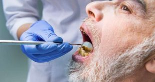 People living with HIV struggle to access much needed dental care