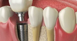 The long time care of implant