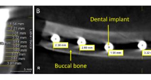 Ultrasound tops CBCT in peri-implant bone imaging2