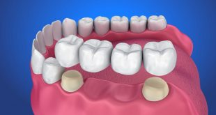 Dental bridge Everything you need to know