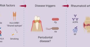 Predictive Factors Related to the Progression of Periodontal Disease in Patients With Early Rheumatoid Arthritis