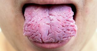 a-fissured-tongue