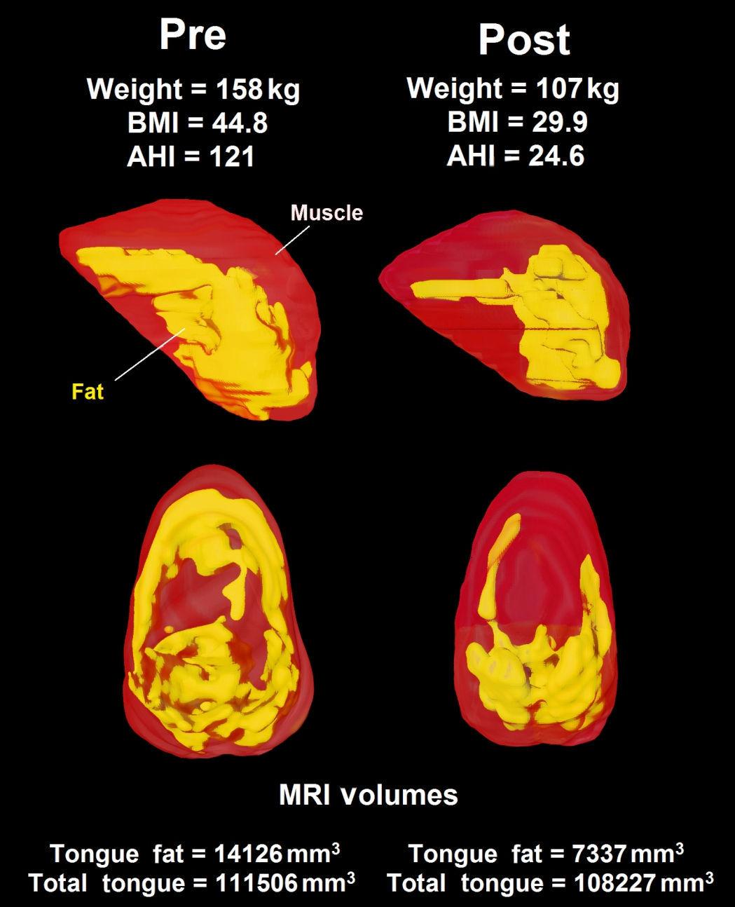 MRI sleep apnea2
