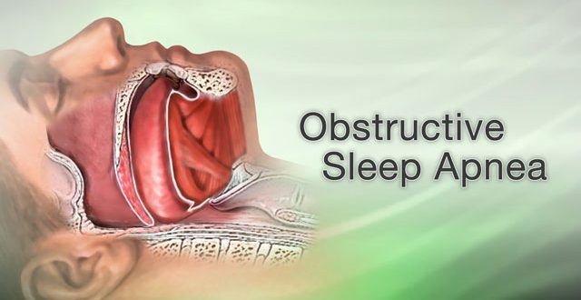 Want to improve sleep apnea Trimming tongue fat may help