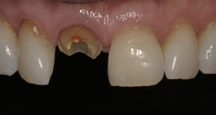 When dental implants are NOT the answer for your patients