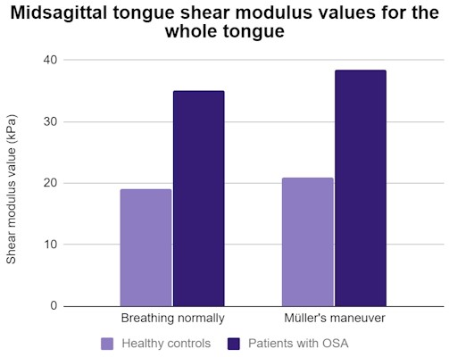 Tongue ultrasound may identify obstructive sleep apnea