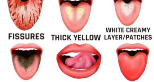 What do different tongue colors mean