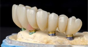 Straumann Campus broadcasts three online webinars on current implant treatments