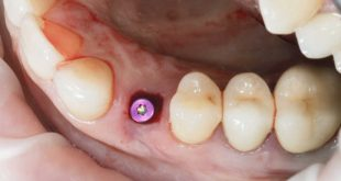 Nanotechnology may improve soft-tissue integration of dental implants