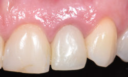 https://d36zfg4d500s0g.cloudfront.net/up/dt/2020/10/Dr-Stephen-Chen-on-principles-for-case-selection-in-post-extraction-implant-placement-3-250x152.jpg