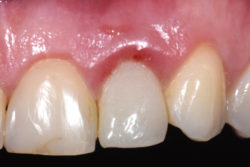 https://d36zfg4d500s0g.cloudfront.net/up/dt/2020/10/Dr-Stephen-Chen-on-principles-for-case-selection-in-post-extraction-implant-placement-2-250x167.jpg