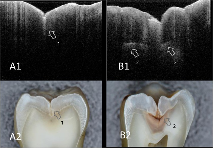 SS-OCT images of occlusal caries and corresponding histological view after cross-sectioning