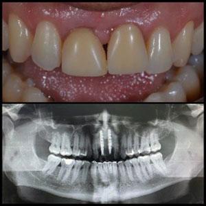 https://www.dentistrytoday.com/images/K2_stories/021221-mourao-Fig-6%5b2%5d.jpg
