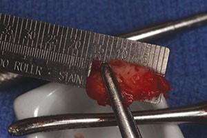 https://www.dentistrytoday.com/Media/EditLiveJava/0421_Rasner_07.jpg